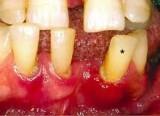 gigi goyang